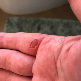 and a blister to show for all that digging